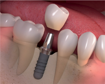 Dental Implants in Woodland Hills